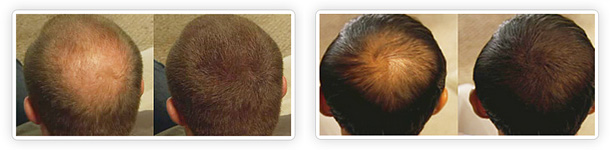NANOGEN Hair Fibres - Before & After
